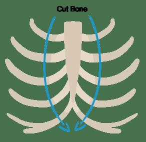 Burial Sternum
